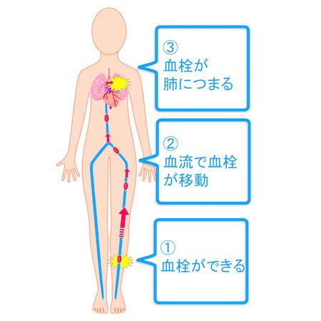 予防 血栓 症 深部 静脈